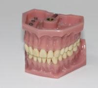 denture repairs