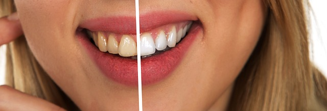 teeth before after