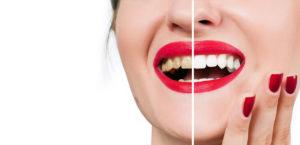 coffee teeth stain