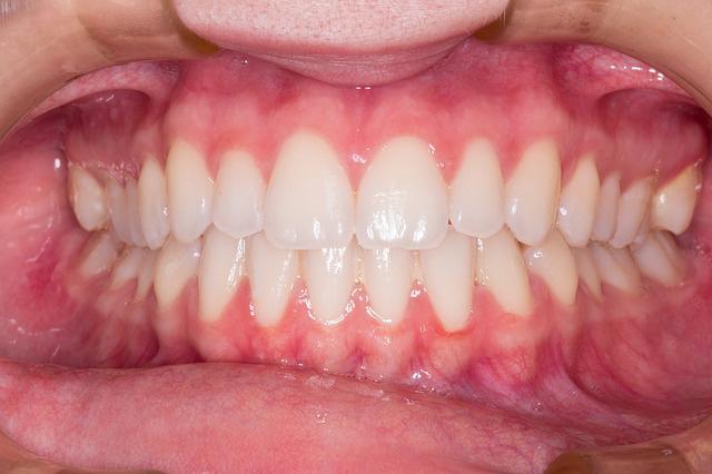 normal healthy gums