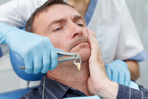 teeth extraction