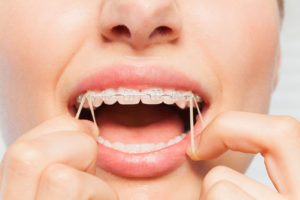 Teeth Gap Bands and Your Safety