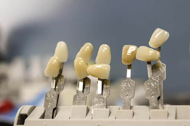 implant tooth model