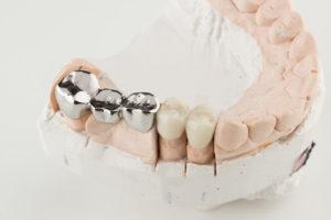 veneer tooth repair