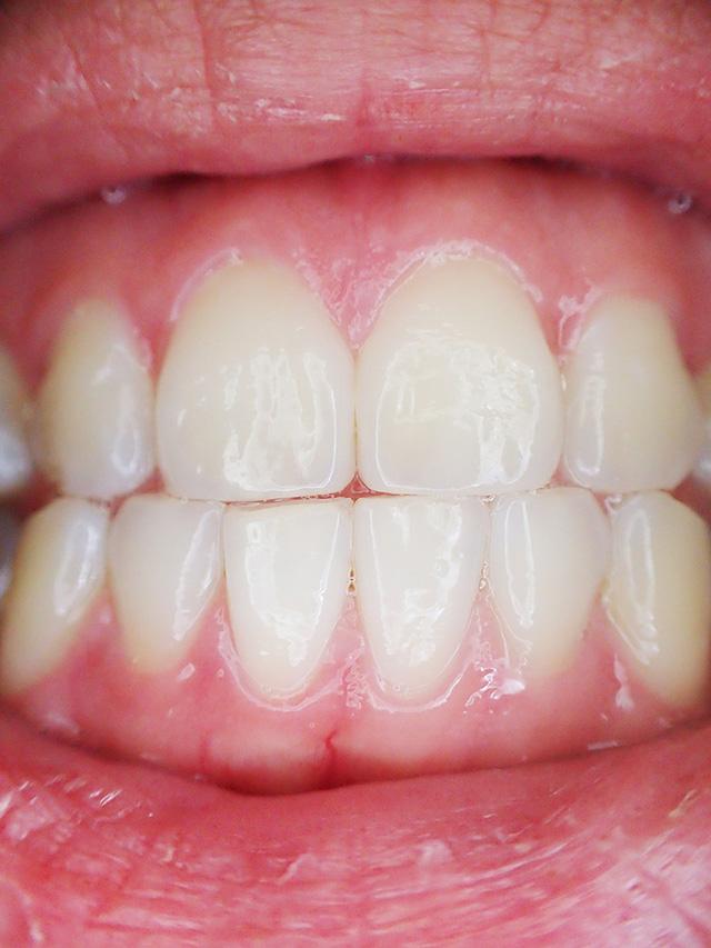 Gum Disease Contagious