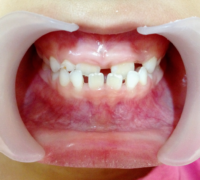 The Diastema Treatment