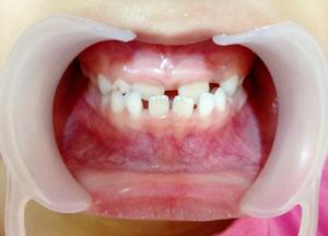 The Diastema Treatment