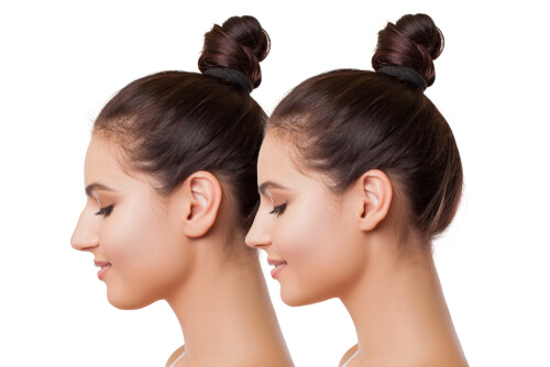 girl's jaw plastic surgery before and after