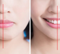 jaw plastic surgery realigns your jaw bone