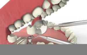 Dental Implants Procedure Steps