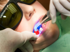 laser dental fillings