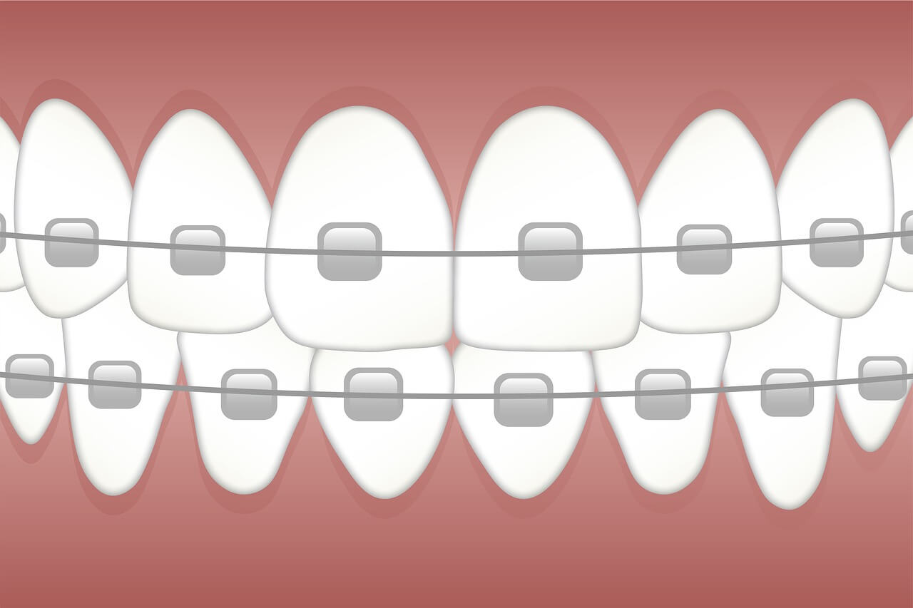 How long does it take to put on braces | Marshall D.D.S