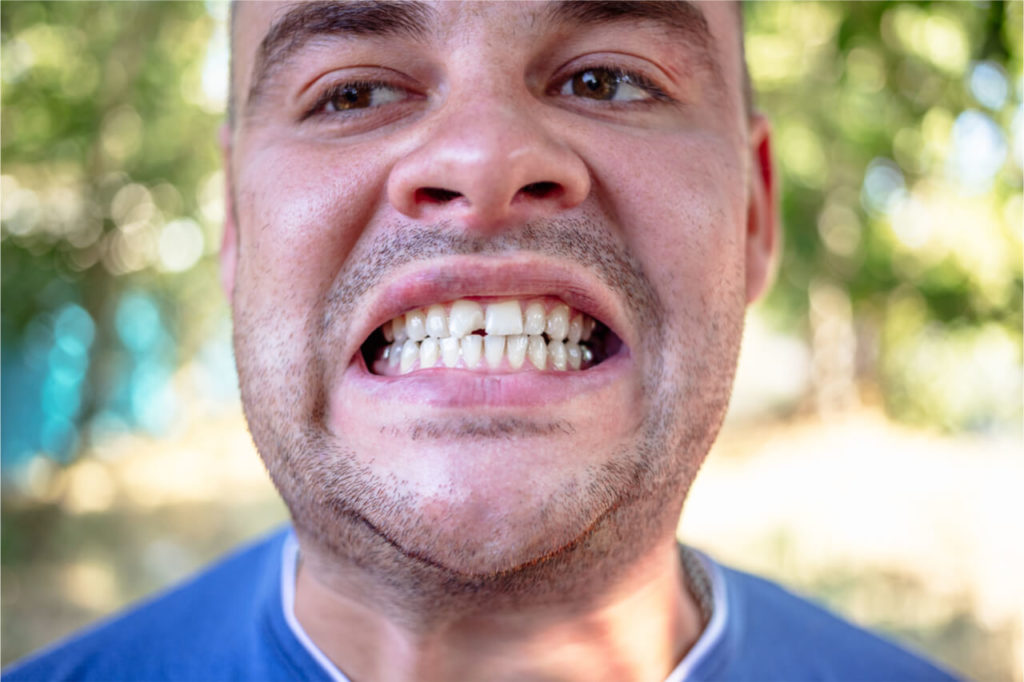 how to fix a chipped tooth at home