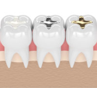 tooth colored fillings cost