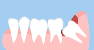 impacted wisdom teeth might cause bad breath