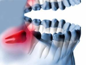 removal of impacted teeth