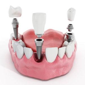 are teeth implants safe