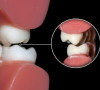 dental occlusion