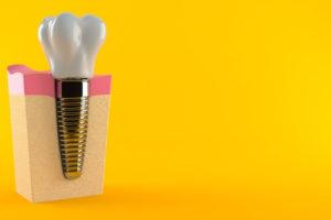 tooth implant or bridge
