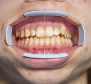 excessive fluoride exposure during tooth development can cause