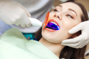 Is It Worth Getting Your Teeth Whitened At The Dentist Procedure