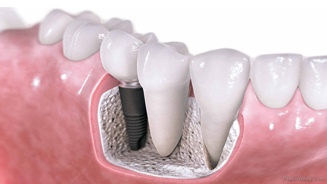 Is The Dental Implant Cost Worth It?