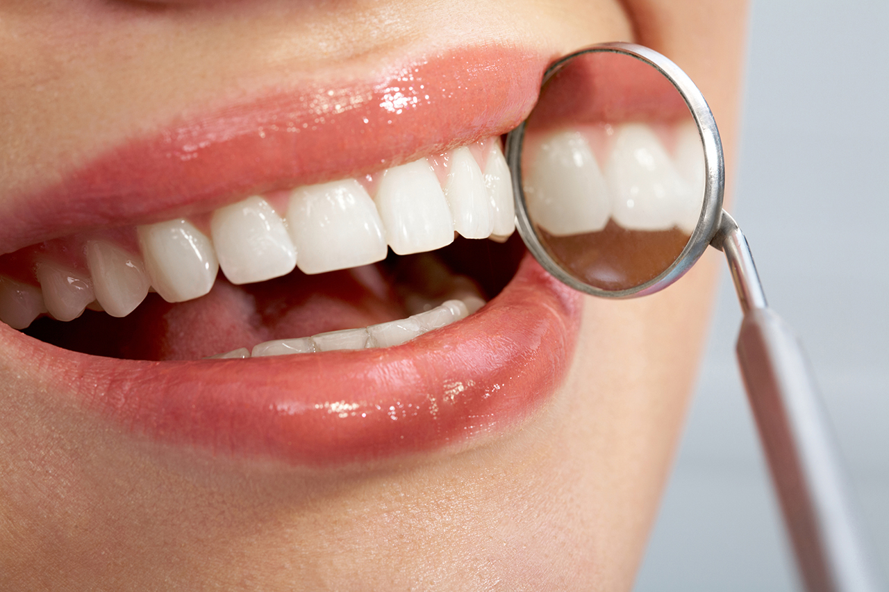 What Is The Cost Of Teeth Whitening