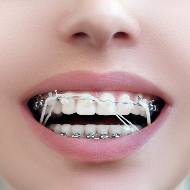 Teeth Gap Bands