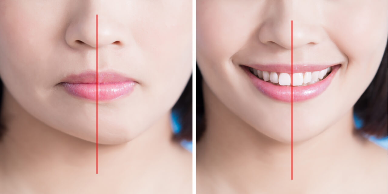 What To Expect During Jaw Plastic Surgery