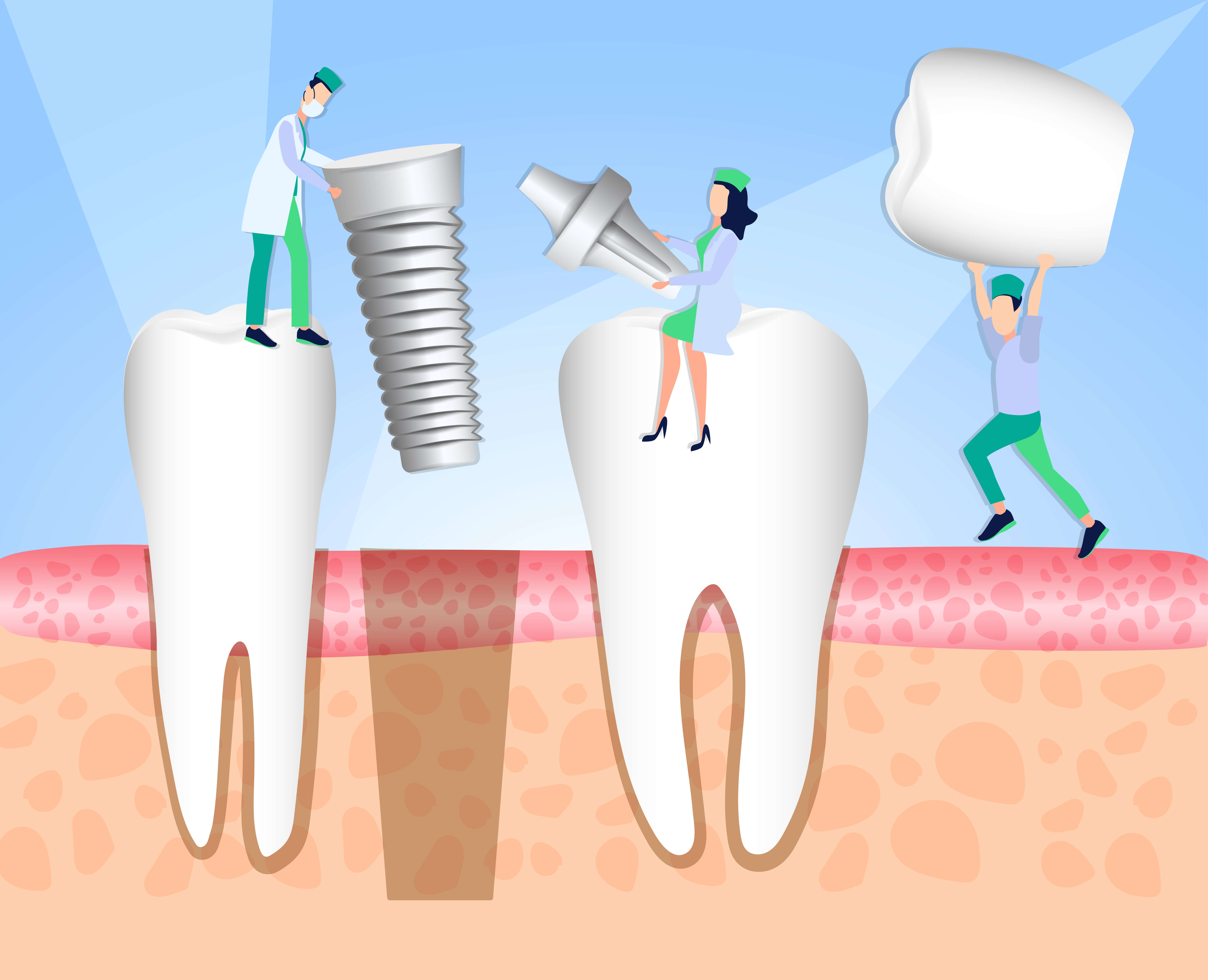 Dental Implant Complications And Problems