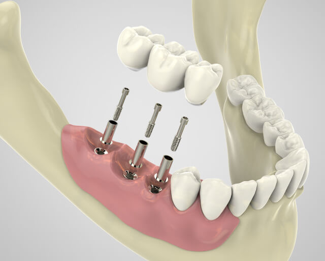 Dental Implant Complication