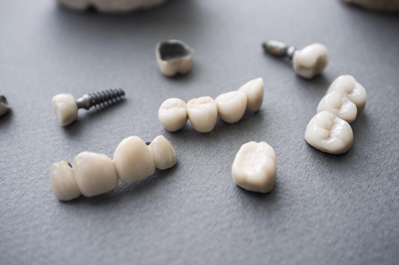 dental bridge and implant