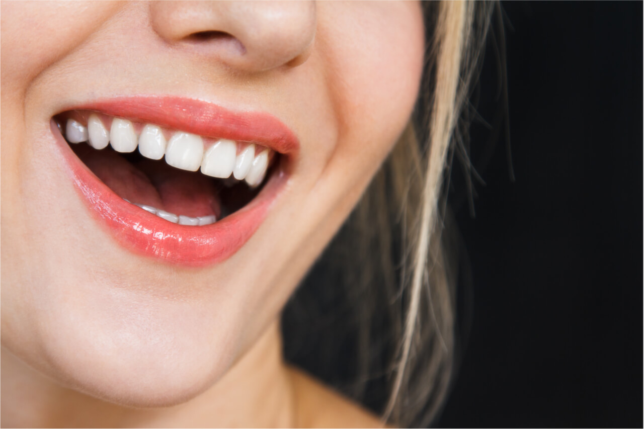 How to embrace straightening teeth without braces