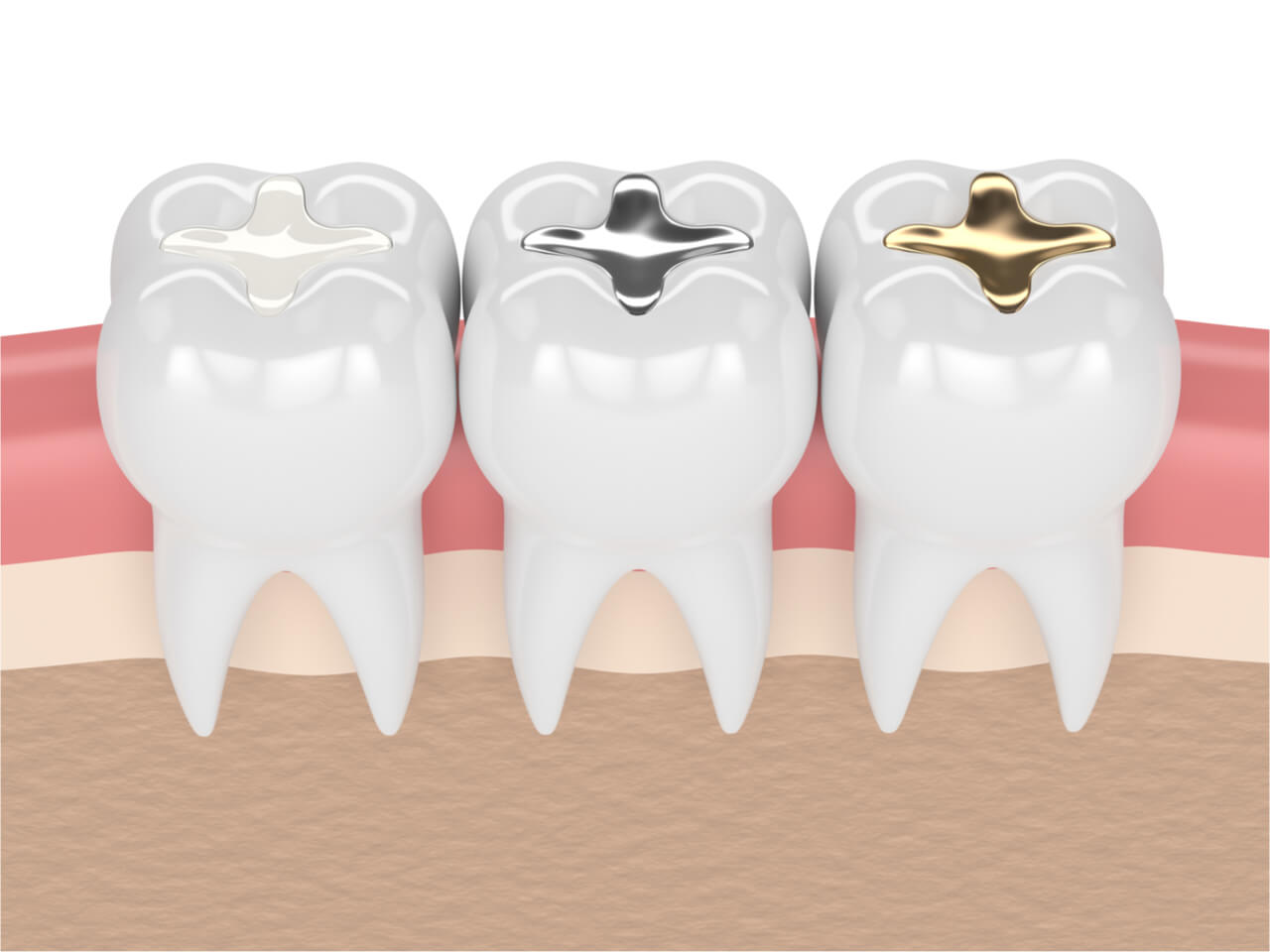 Tooth colored fillings cost: Everything You Need to Know
