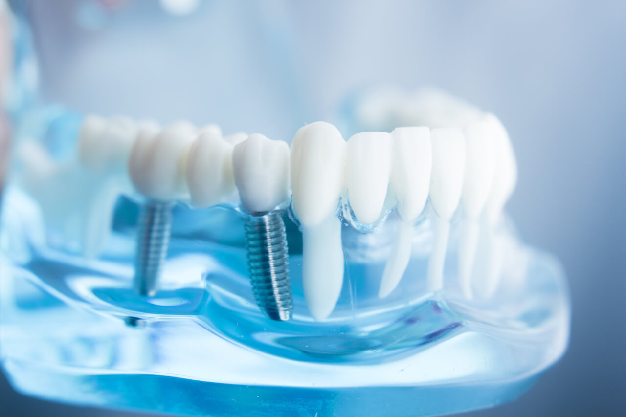 Are teeth implants safe?
