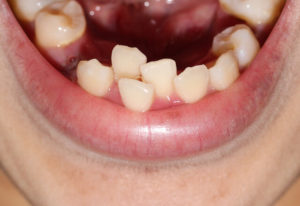 crowding teeth