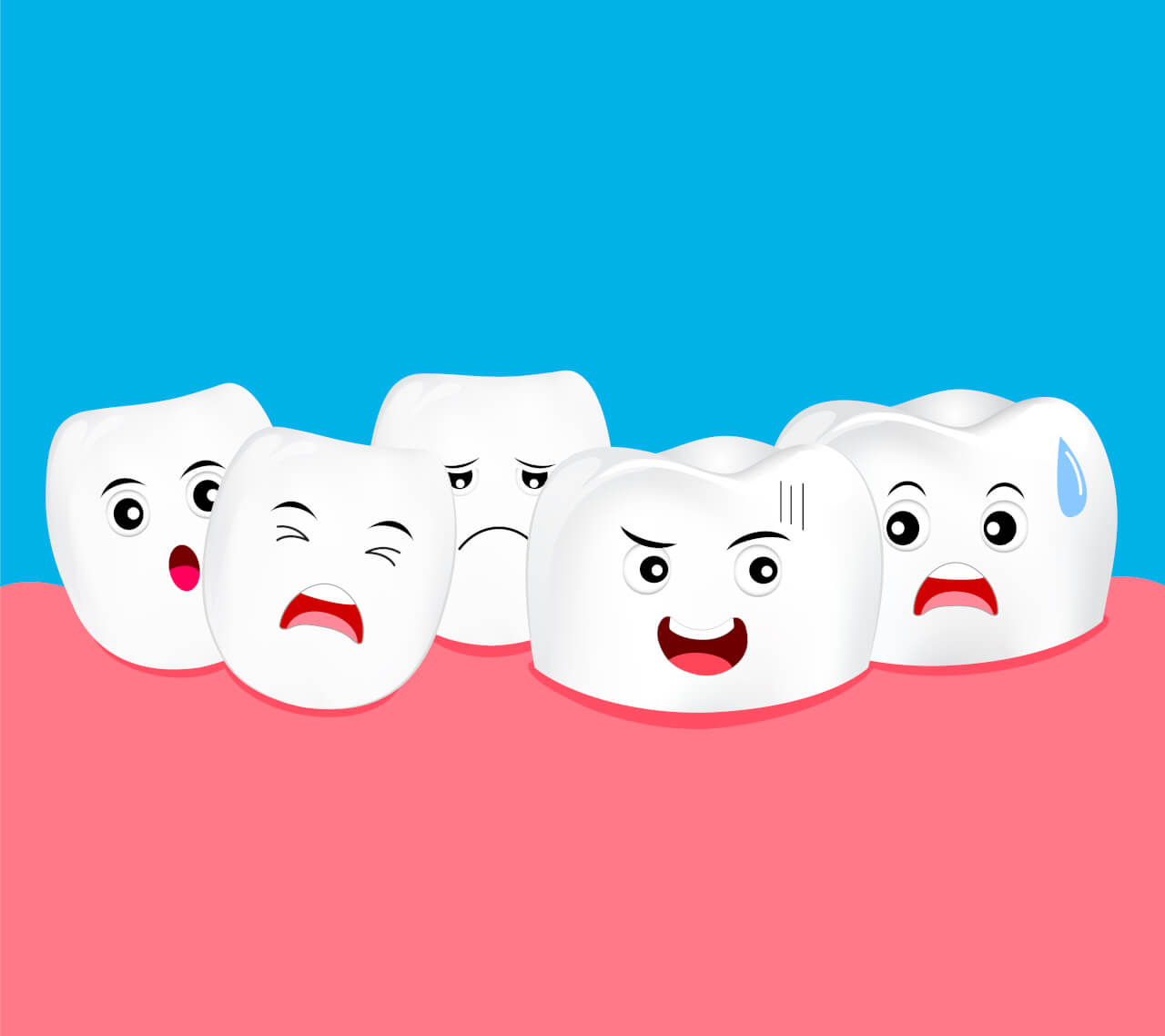 Crowding of Teeth
