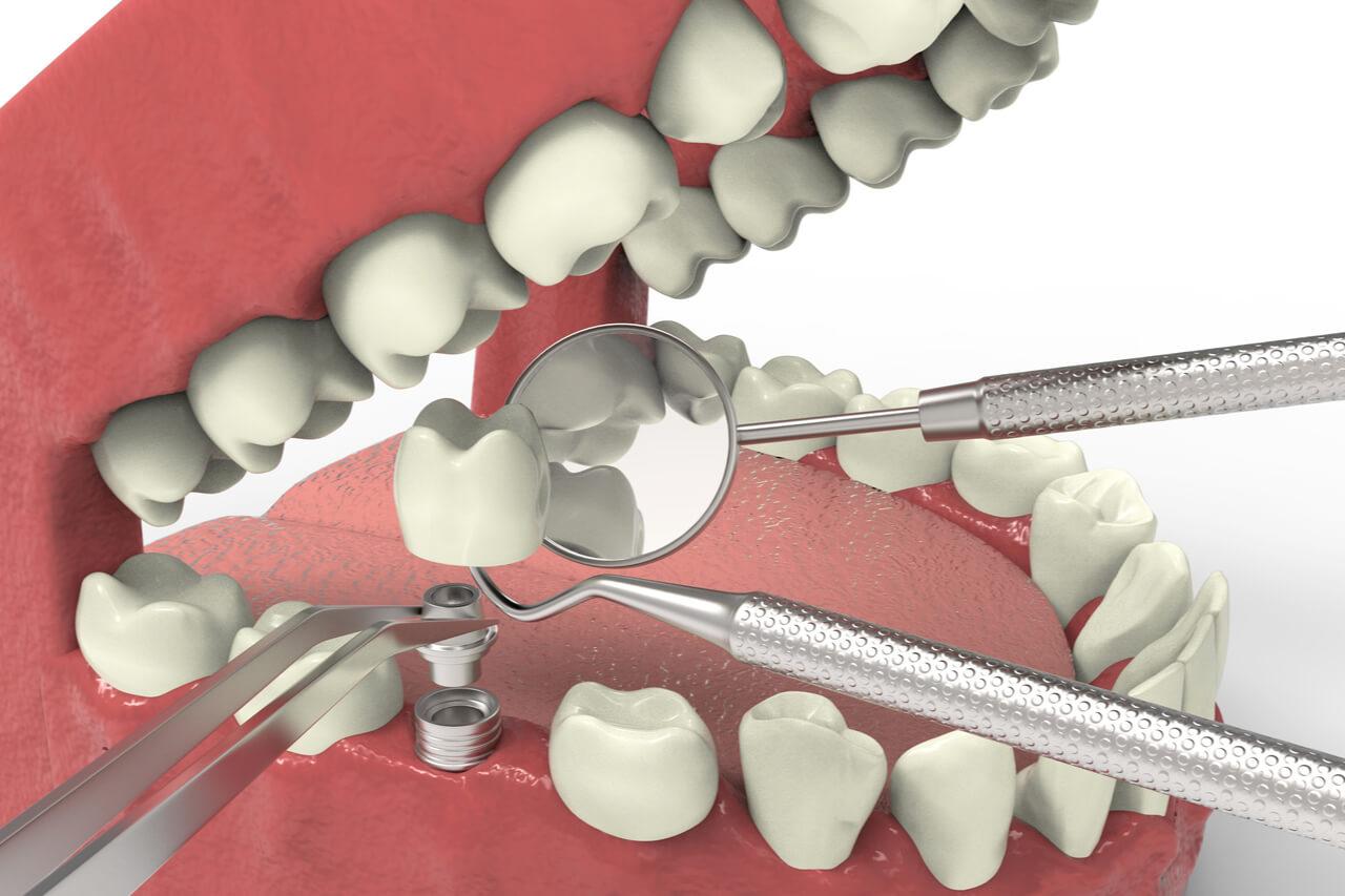 Missing teeth: Are dental implants painful?