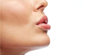 fuller lips after injection