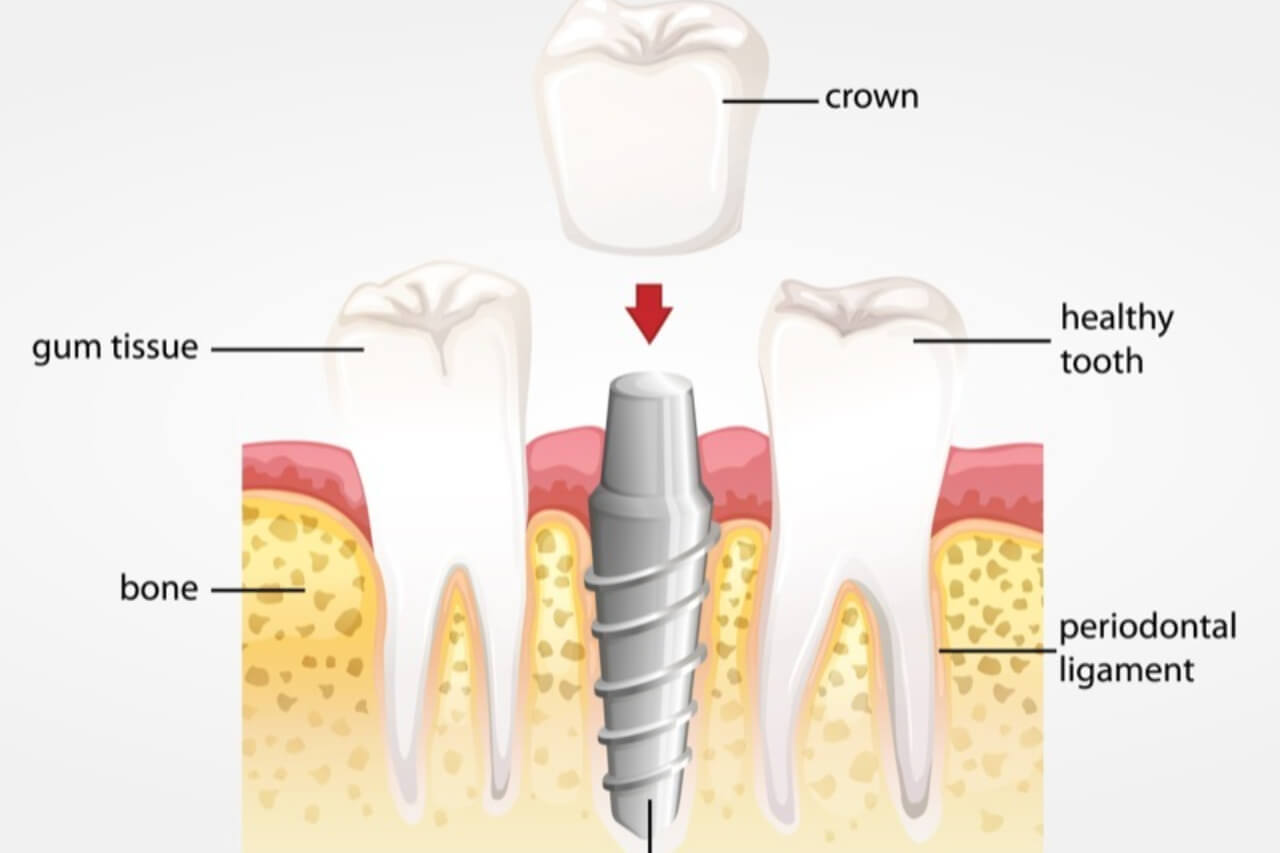 Dental Implant Crowns: The Finishing Touches After Implants