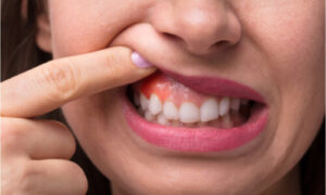 sample sore gums