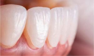 actual representation of dental veneers on teeth